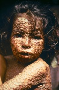 Illustration of Affected By Smallpox And Measles At The Age Of 25 Years.?