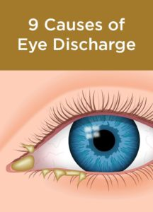 Illustration of Infections That Cause Pus In The Eyes.?