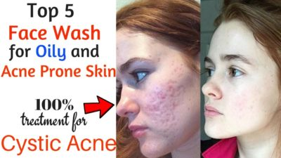 Illustration of Facial Treatment For Acne Prone Skin.?