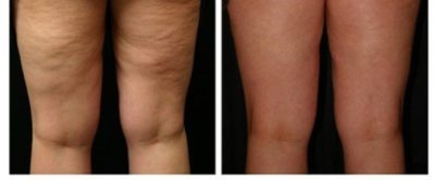 Illustration of Is Cellulite The Same As Varicose Veins?