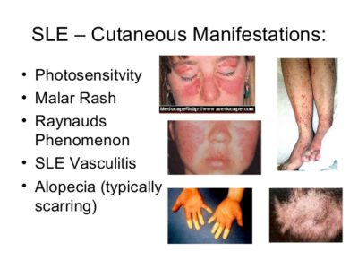 Illustration of What Are The Features Of Lupus?