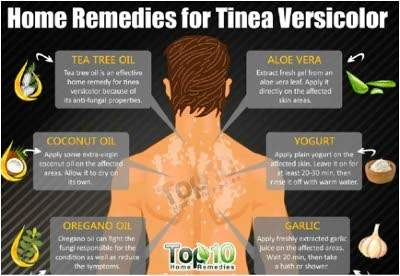 Illustration of Medicine For Tinea Versicolor That Does Not Heal.?