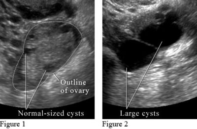 Illustration of Indications Of Cysts After Menstruation On Cyst Ultrasound Are Lost?