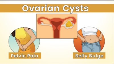 Illustration of Signs Of An Ovarian Cyst.?
