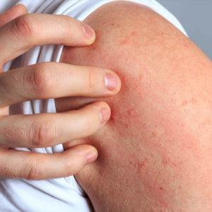 Illustration of Does Stomach Acid Disease Can Cause Itchy Allergies?