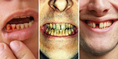 Illustration of How To Find Out The Condition Of A Person's Teeth That Must Be Removed?
