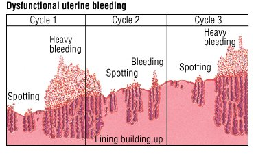 Illustration of Blood Loss Outside The Menstrual Cycle After Consumption Of Drugs.?