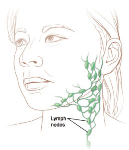 Illustration of How Long Does The Healing Process Of Lymph Node Swelling?