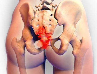 Illustration of Spinal Pain To The Coccyx After Falling In A Sitting Position?