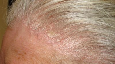 Illustration of Overcome The Thick Dandruff On The Scalp?