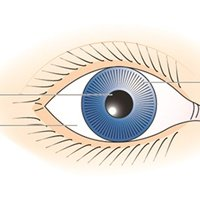 Illustration of The Eyeball Looks Smaller Along With The Body Limp And Feels Stiff?