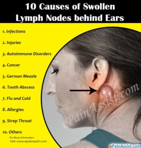 Illustration of Causes Of Lymph Nodes?