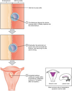 Illustration of Ectopic Pregnancy Or Nidation Process?