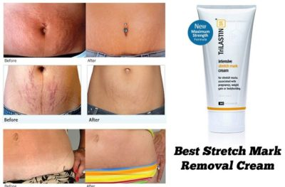 Illustration of Solution To Get Rid Of Stretch Marks?