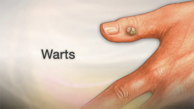 Illustration of How To Prevent And Overcome Warts?
