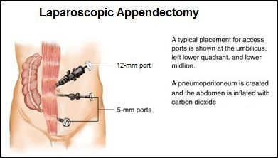 Illustration of Post-operative Hyperthyroid Therapy For Appendicitis?