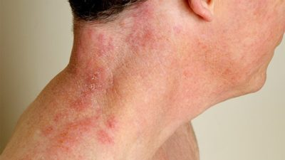 Illustration of Causes Of Shingles On The Neck?