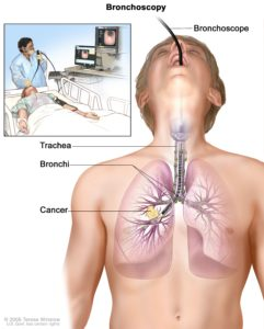 Illustration of The Possibility Of Recovery In Patients With Lung Cancer?