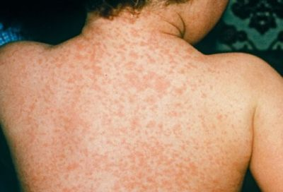 Illustration of Causes Of Itchy And Flaky Skin Due To Measles?