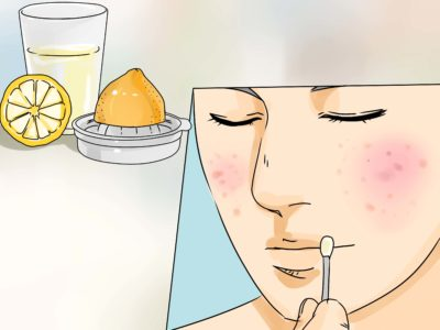 Illustration of How To Stop Acne From Increasing?