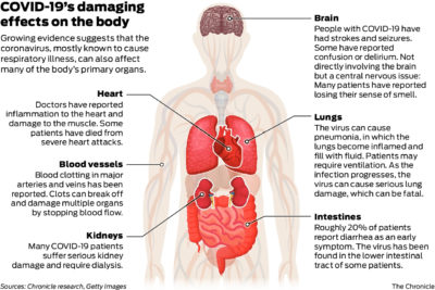 Illustration of Causes Of Blood Vessel Infection In The Brain?