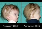 Child Growth And Development After Hydrocephalus Surgery?