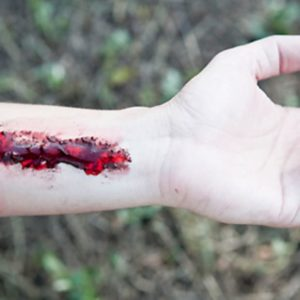 Illustration of How To Deal With Festering Wounds Accompanied By Blood?