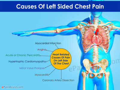 Illustration of Left-sided Chest Pain And Medicine?