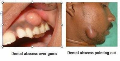 Illustration of Problems With Perforated And Porous Teeth?