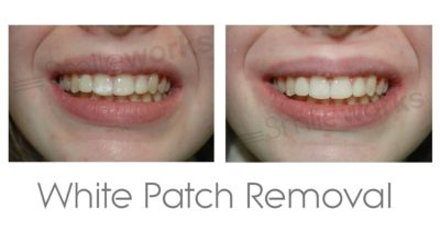 Illustration of Why Do Teeth Peel After Scaling And Patching Again?