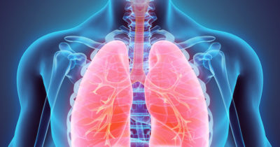 Illustration of Drug Side Effects In Patients With Lung Disease?