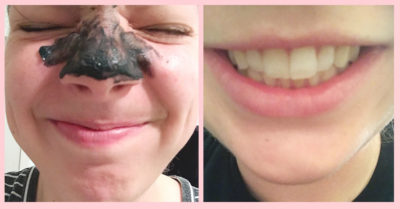 Illustration of Is It True That Activated Charcoal Can Heal Damaged Skin Due To Mercury Exposure?