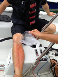 Illustration of First Aid When Stung By A Jellyfish?