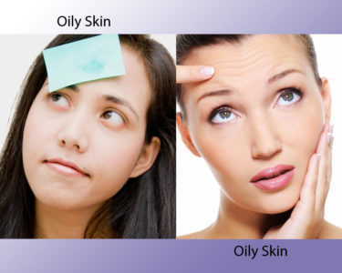 Illustration of The Skin Feels Oily And Dry?