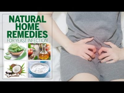 Illustration of The Natural Way To Cure White Patches On The Vagina?