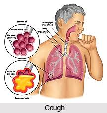 Illustration of Can Coughing Cause A Loose Stitch?