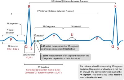 Illustration of What Is The Meaning Of ECG Results There Is ST Elevation, Irregular Heart Rhythm And T Is Inverted?