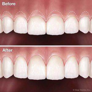 Illustration of The Solution For Teeth Covered With Gums May Or May Not Be Removed?