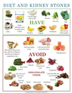 Illustration of Food For Patients With Kidney Stones?