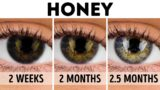 Cure The Minus Eye The Natural Way?