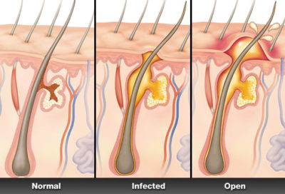 Illustration of Why In The Pubic Area As There Are Boils That Do Not Hurt?