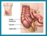 Postoperative Cysts And Appendicitis?