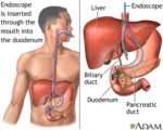 Endoscopic Retrograde Cholangiopancreatography (ERCP) Is Surgery Or Not?