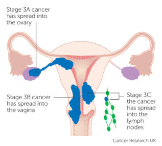 Illustration of Why In The Process Of Cervical Cancer Radiotherapy Stage 3B, So Can Not Move And Talk?