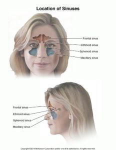 Illustration of The Left Headache And The Left Nose Come Out Phlegm Accompanied By Blood?