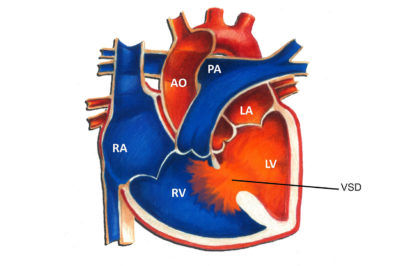 Illustration of Ventricular Septum Defect Surgery Uses BPJS.?