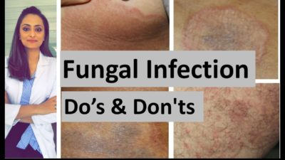 Illustration of Treatment Of Fungal Infections In The Groin And Buttocks?