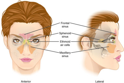 Illustration of Headache And Right Cheek Due To Runny Nose And Nasal Congestion?