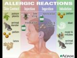 How To Get Rid Of Allergies?