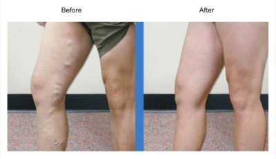 Illustration of What Should Be Done After Injecting Varicose Veins?
